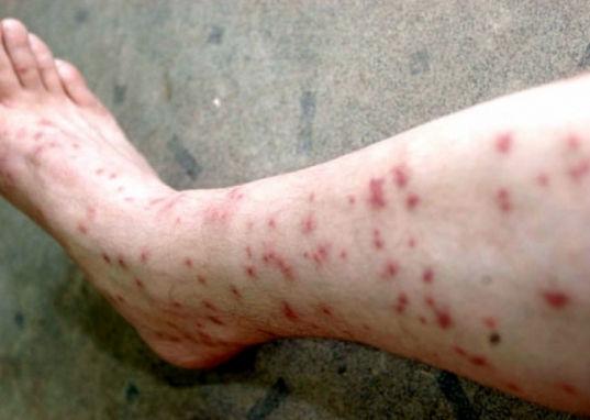 Укусы блох на ноге человека